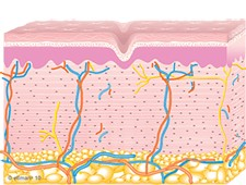 Graphic of Collagen Remodeling Occurs